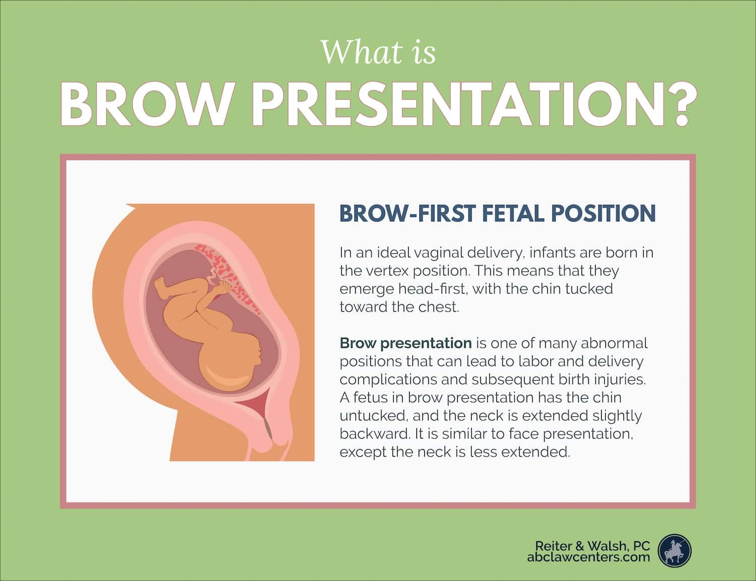 Brow Presentation During Childbirth