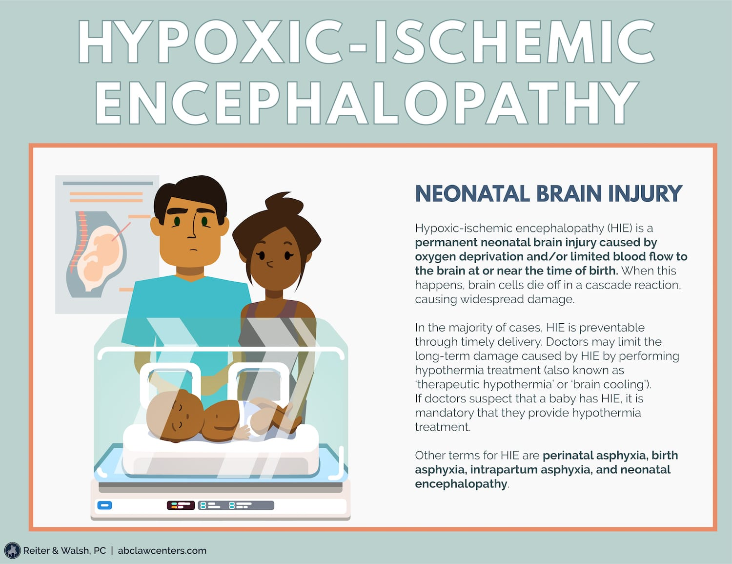 Hypoxic-Ischemic Encephalopathy (HIE): Legal Help for Birth Injuries